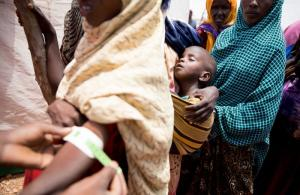 Somalian refugees in Ethiopia: measuring arm circumference is a reliable way to detect malnutrition.