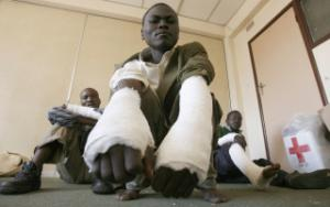 Opposition supporters show their injuries: their limbs were broken during a rally in Harare.
